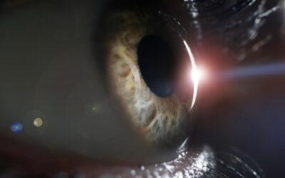 Poluarea atmosferica asociata cu un risc crescut de orbire